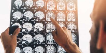 Nöroloji Hangi Hastalıklara Bakar