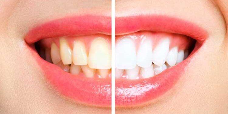 Diş Sararmaları